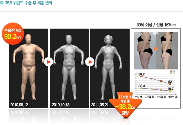 36.5 위밴드 수술 후 체중 변화: 수술전 90.2kg 11개월 후 체중 총 -38.2kg감량